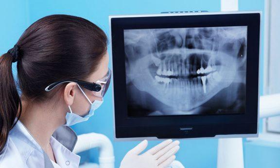 лучевая диагностика полости рта
